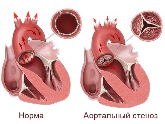 Синдром Марфана: симптомы, признаки, диагностика